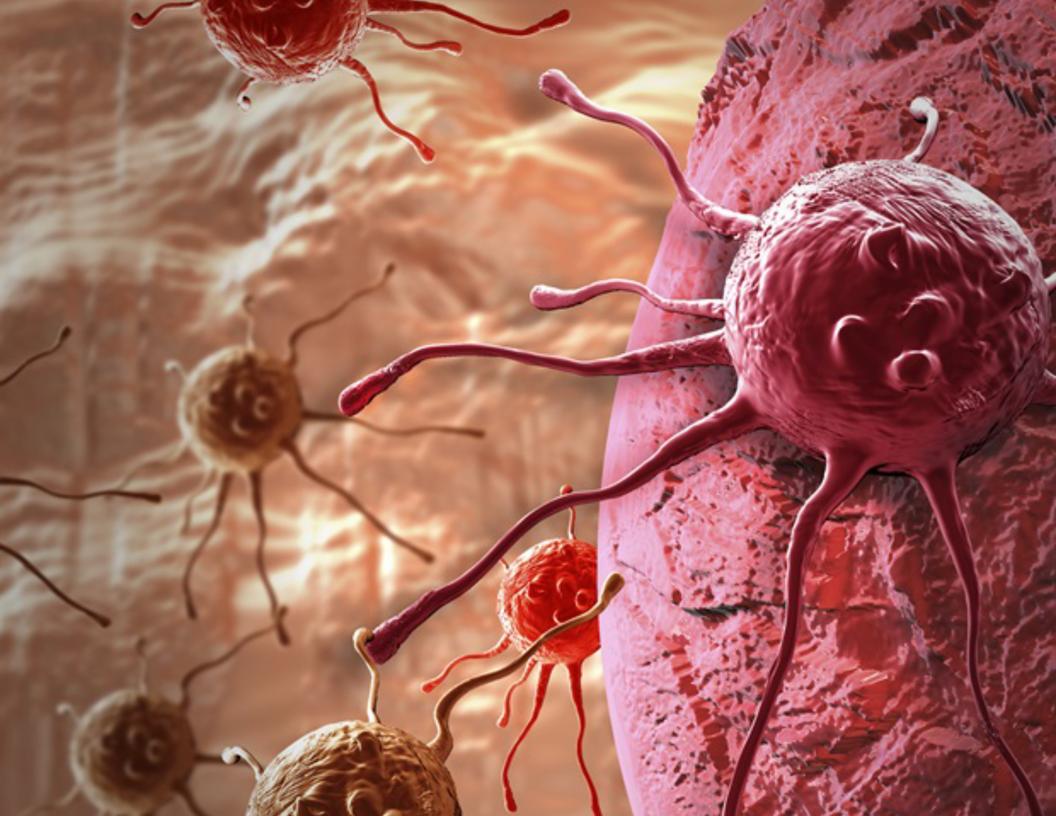 Las tasas de cáncer cervical invasivo son altas entre las mujeres con VIH en Sudáfrica y América Latina