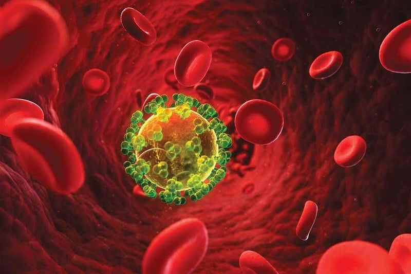 Mortalidad en pacientes hospitalizados con Diagnostico  de Infección por Virus  de Inmunodeficiencia Humana