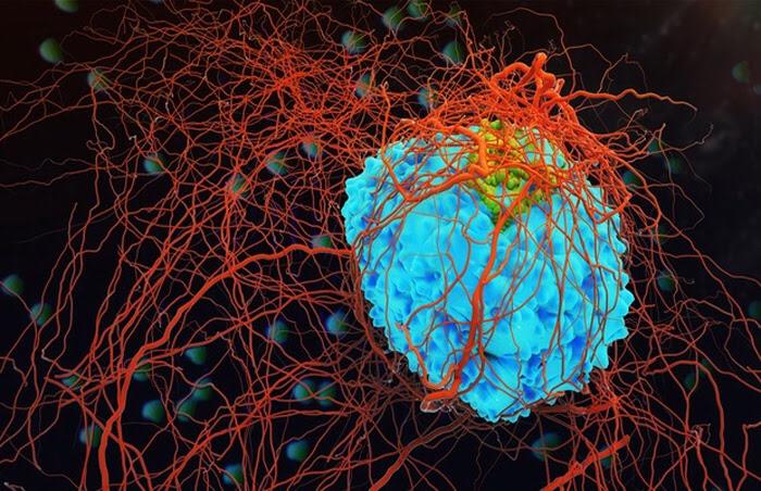 Una cura para el VIH que podría funcionar