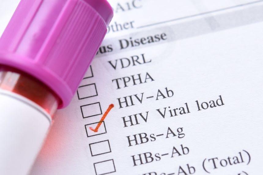 Régimen basado en dolutegravir no inferior al régimen basado en efavirenz de baja dosis para tratar el VIH-1