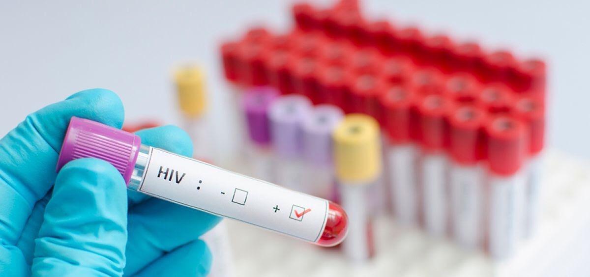Nuevas recomendaciones sobre el uso de anticonceptivos hormonales en mujeres con riesgo de VIH
