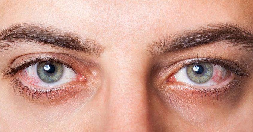 Las Personas Con VIH Y Sífilis Corren El Riesgo De Tener Sífilis Ocular
