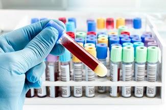 Funcionarios de los NIH advierten que el aumento de las tasas de ITS constituye una crisis de salud pública