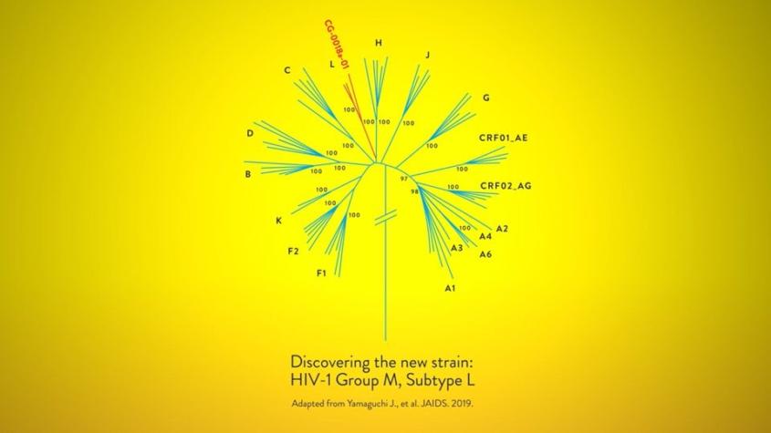 Preguntas y respuestas: el descubrimiento de una nueva cepa del VIH es un recordatorio de una pandemia desafiante