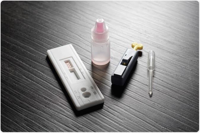 Cómo la autoevaluación del VIH afecta el diagnóstico y el comportamiento en HSH