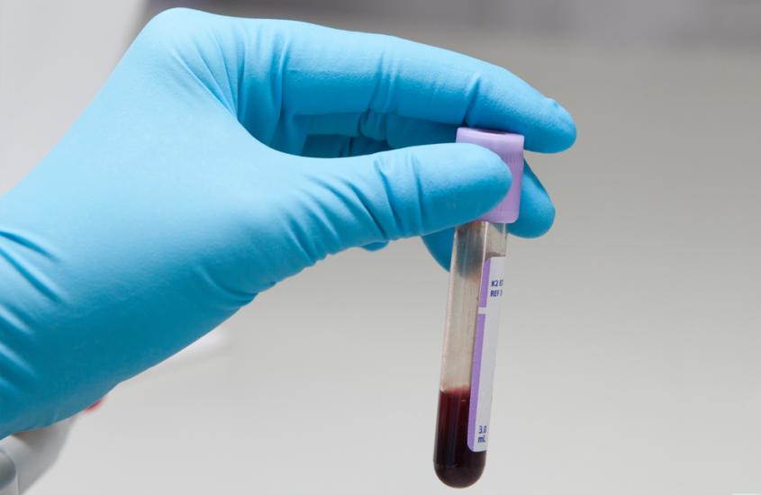 Los aumentos de lípidos después de cambiar de TDF a TAF son reversibles cuando el tratamiento vuelve a cambiar a TDF