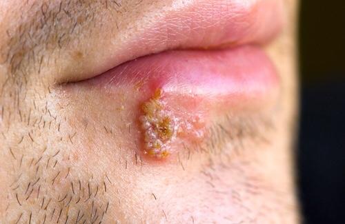 Las úlceras causadas por la infección por HSV-2 aumenta el riesgo de infección por VIH proporcionan una vía física directa de entrada para el VIH en una persona no infectada.