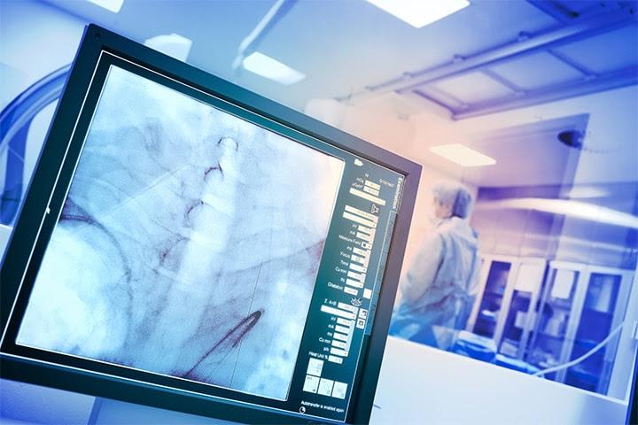 Cardiología: qué ajustar, qué conservar para la atención de COVID-19