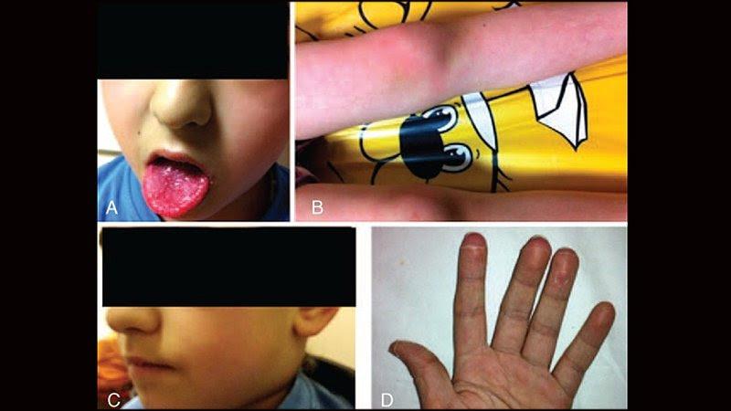 COVID-19: cómo reconocer y tratar el síndrome similar a la enfermedad de Kawasaki
