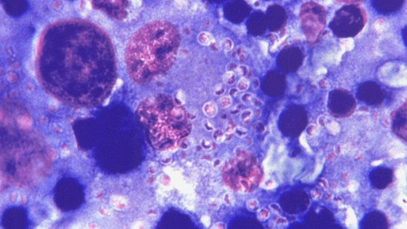 Nuevas guías de la OMS/OPS para el diagnóstico y manejo de la histoplamosis diseminada en personas que viven con VIH