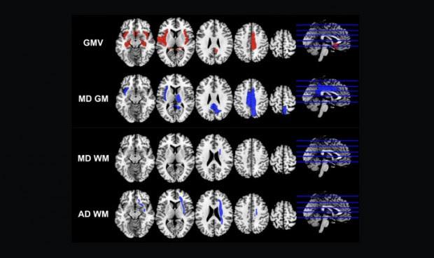 Covid-19: un estudio relaciona el SARS-CoV-2 con pérdida de memoria