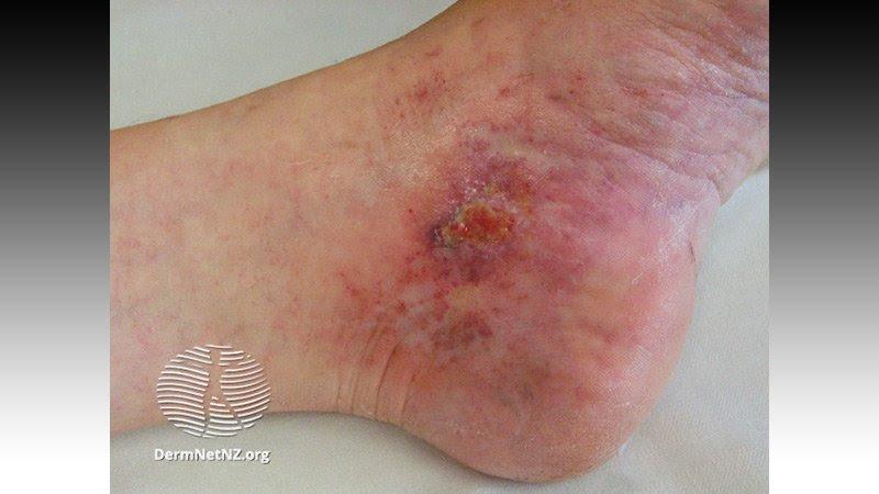 Signos cutáneos vinculados a riesgo de coagulación por COVID-19